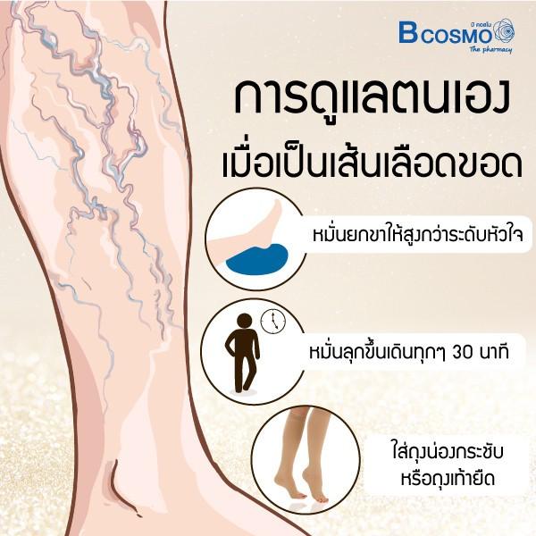 06-2 อาการเส้นเลือดขอด ภัยร้ายใกล้ตัว Blog  เส้นเลือดขอด ถุงน่อง